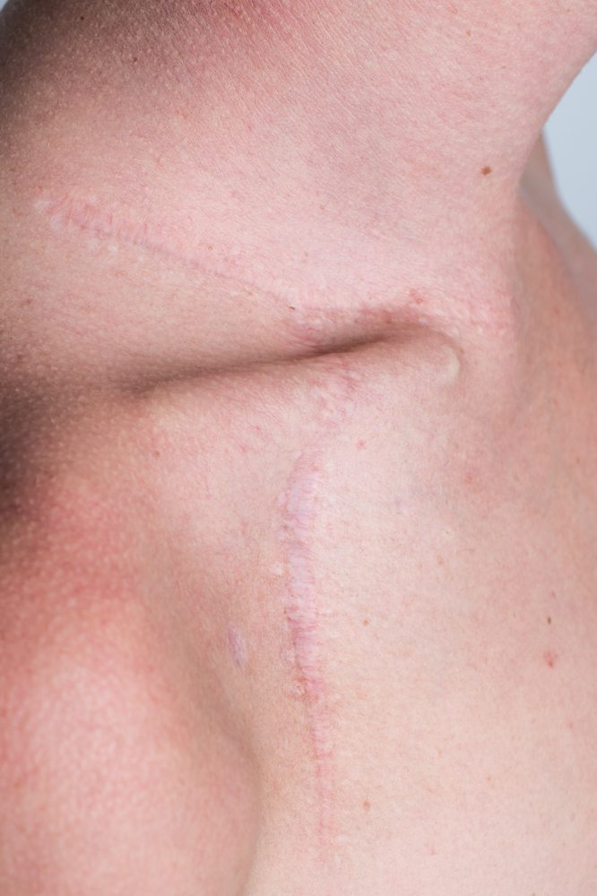 Skadefotografen kolding– fotograf til ar og skader